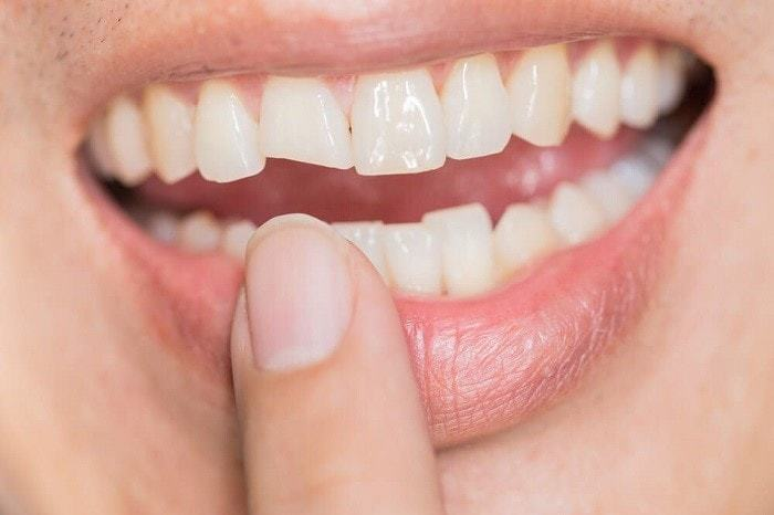 Who Repairs Teeth and Oral Issues?